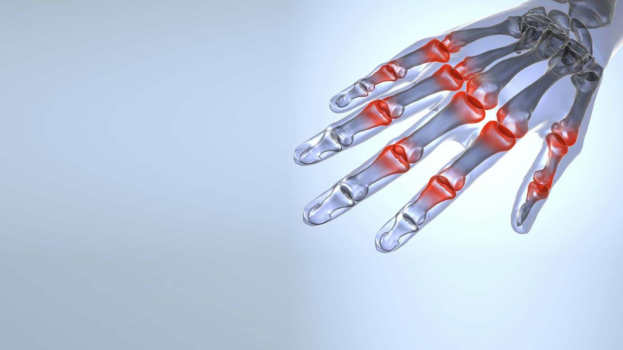 New ways of treating arthritis